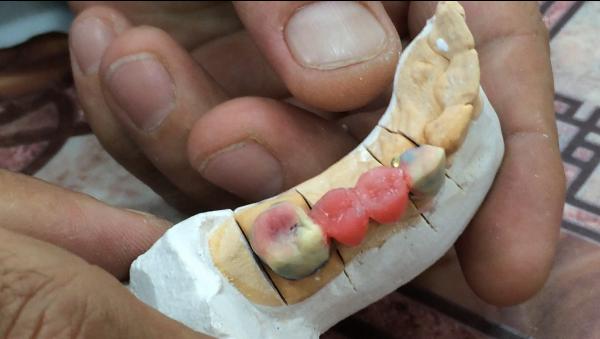 Техника изготовления паяного мостовидного протеза