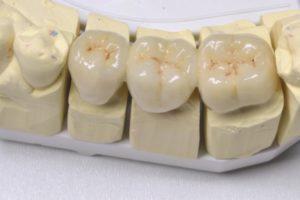 керамические зубные коронки E-max