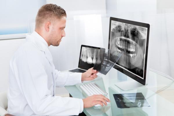 3D хирургические шаблоны